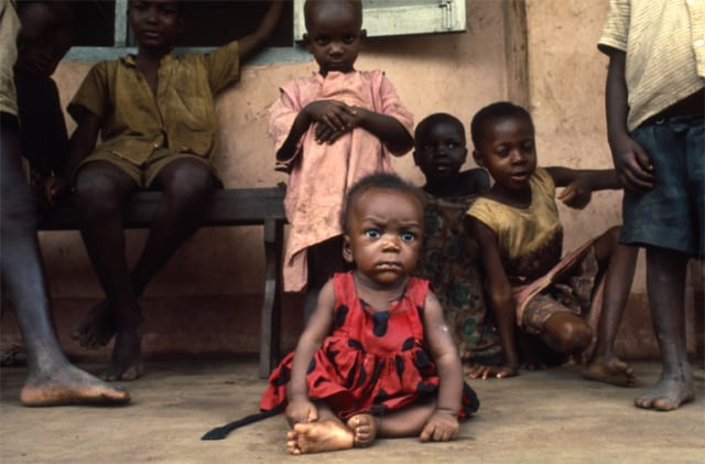 La famine,Sécession de la province du Biafra, Nigéria, juillet 1968, GC-B-080 ©Fondation Gilles Caron